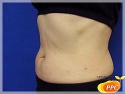 脂肪分解(溶解)注射 症例写真3-4 側面