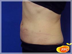 脂肪分解(溶解)注射 症例写真3-5 側面