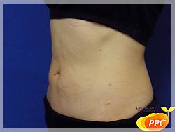 脂肪分解(溶解)注射 症例写真2 側面 After