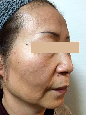 ヒアルロン酸&ボトックス トータル治療 症例写真1 Before