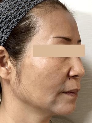 ヒアルロン酸&ボトックス トータル治療 症例写真1 After
