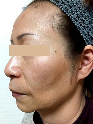 ヒアルロン酸&ボトックス トータル治療 症例写真2 Before