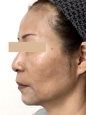 ヒアルロン酸&ボトックス トータル治療 症例写真2 After