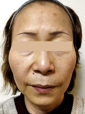 ヒアルロン酸&ボトックス トータル治療 症例写真3 Before