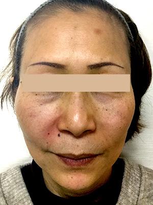 ヒアルロン酸&ボトックス トータル治療 症例写真3 After