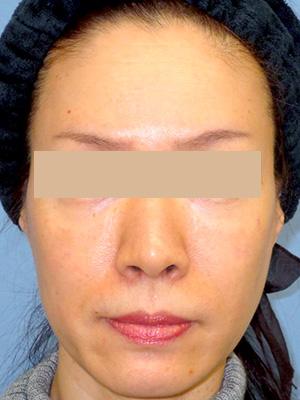 ヒアルロン酸&ボトックス トータル治療 症例写真2正面 Before