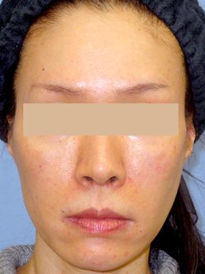 ヒアルロン酸&ボトックス トータル治療 症例写真2正面 After
