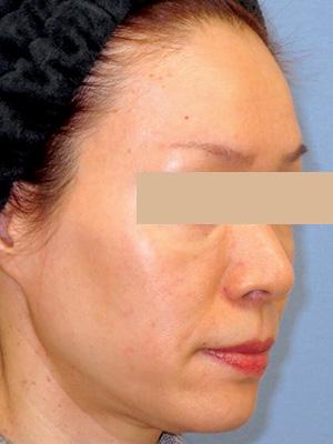 ヒアルロン酸&ボトックス トータル治療 症例写真2右側面 Before