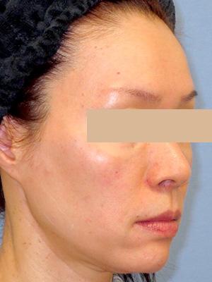ヒアルロン酸&ボトックス トータル治療 症例写真2右側面 After