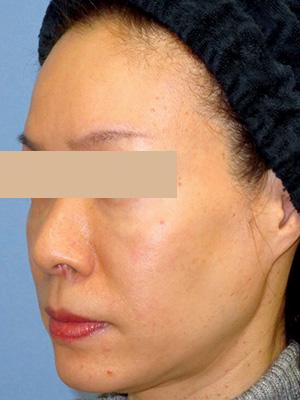 ヒアルロン酸&ボトックス トータル治療 症例写真2左側面 Before