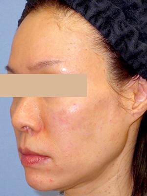 ヒアルロン酸&ボトックス トータル治療 症例写真2左側面 After