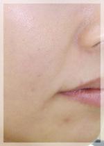 ヒアルロン酸注入 症例写真2 Before