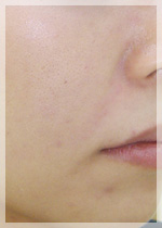 ヒアルロン酸注入 症例写真2 After