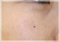 ヒアルロン酸注入 症例写真3 Before