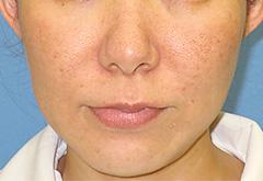 ヒアルロン酸注入 症例写真8 Before