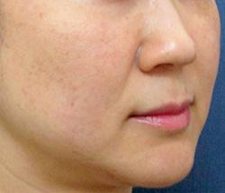 ヒアルロン酸注入 症例写真9 Before