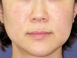 ヒアルロン酸注入 症例写真11 After