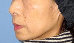 ヒアルロン酸注入 症例写真14 After