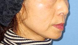 ヒアルロン酸注入 症例写真13 Before
