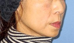 ヒアルロン酸注入 症例写真13 After
