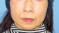 ヒアルロン酸注入 症例写真12 Before