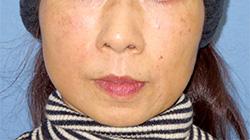 ヒアルロン酸注入 症例写真12 After