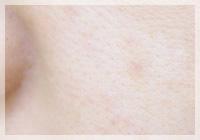 老人性色素斑(シミ)/Qスイッチレーザー、ホクロ/ルビーレーザー 症例写真 After