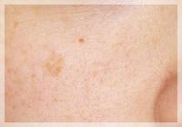 老人性色素斑(シミ)/Qスイッチレーザー 症例写真 Before