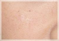 老人性色素斑(シミ)/Qスイッチレーザー 症例写真 After
