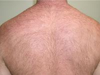 医療 レーザー脱毛 症例写真1 Before