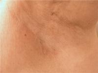 医療 レーザー脱毛 症例写真2 After