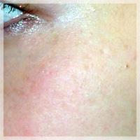 ADM(後天性メラノサイトーシス、両側性遅発性太田母斑様色素斑)/Qスイッチレーザー 症例写真1 After