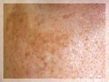 レーザートーニング 肝斑