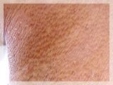 レーザートーニング アトピー性皮膚炎による色素沈着
