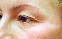 マドンナリフト 症例写真2 Before