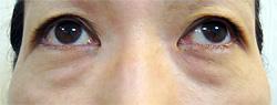 マドンナリフト 症例写真3 Before