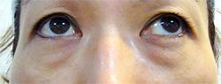 マドンナリフト 症例写真3 After