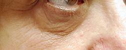 マドンナリフト 症例写真4 Before