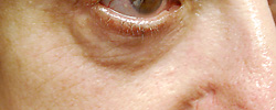 マドンナリフト 症例写真4 After