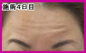 マイクロボトックス 症例写真 施術4日目