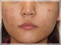難治性ニキビ治療 症例写真1-1 Before