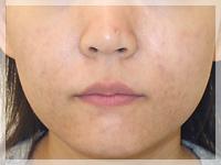 難治性ニキビ治療 症例写真1-1 After
