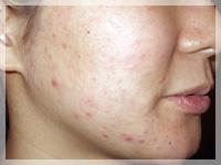 難治性ニキビ治療 症例写真2-2 Before