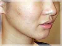 難治性ニキビ治療 症例写真2-2 After