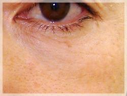 PRP療法 症例写真01 Before