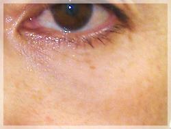 PRP(自己多血小板血漿)療法 症例写真1 After