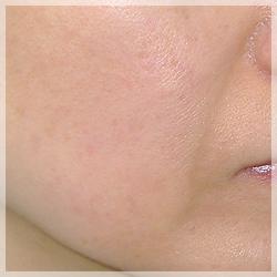 PRP(自己多血小板血漿)療法 症例写真2 After