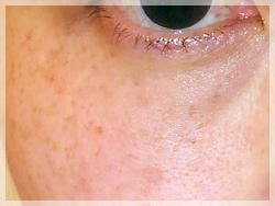 PRP(自己多血小板血漿)療法 症例写真3 Before