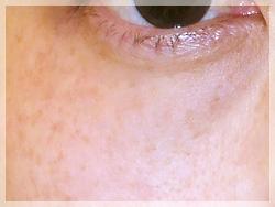 PRP(自己多血小板血漿)療法 症例写真3 After
