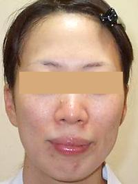 リファーム 症例写真2 Before